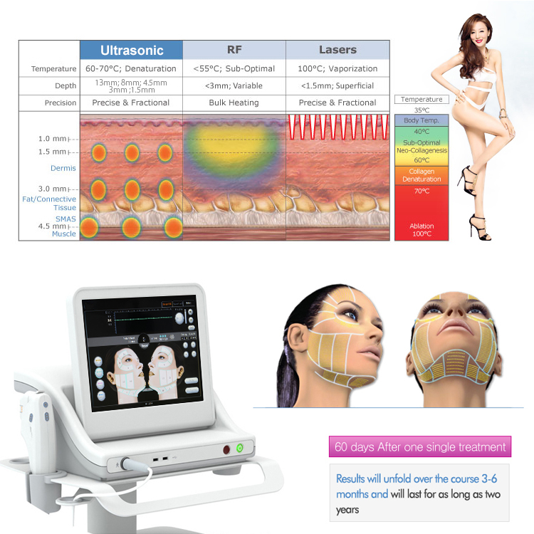high intensity focused ultrasound Beauty Device 6