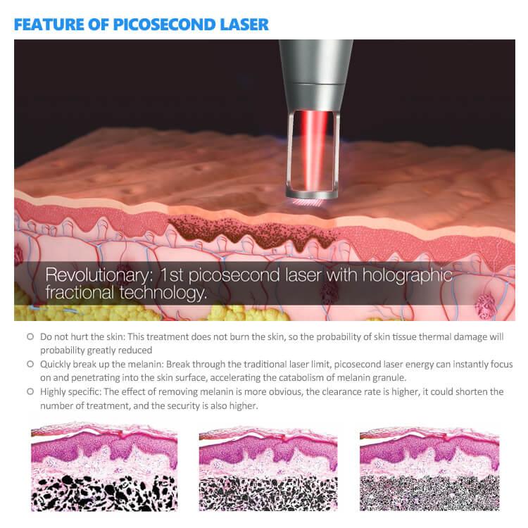 Picosecond Laser Tattoo Removal Machine 5