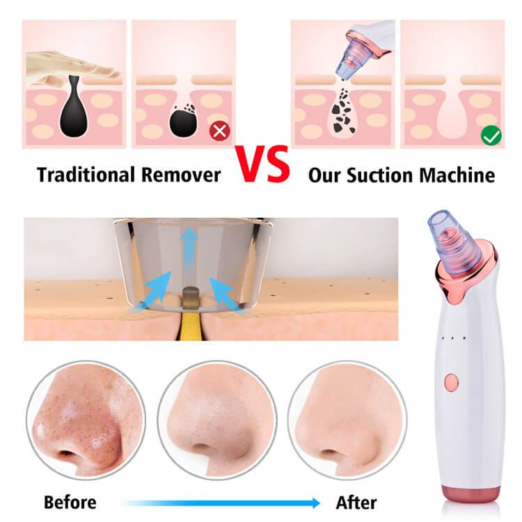 pore remover tool 2