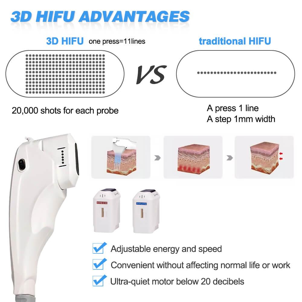 hifu 3d (3)