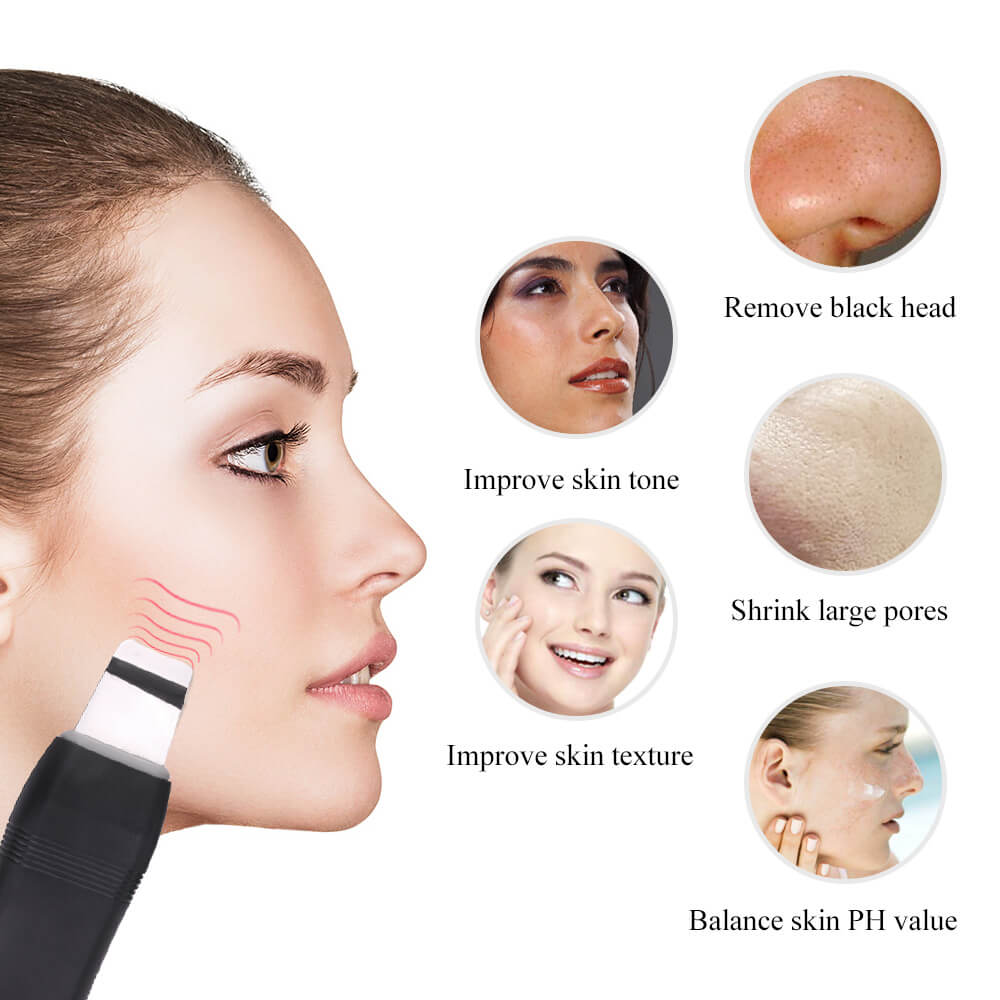 Negative Ion Clean Face Blackhead Remover Machine 7